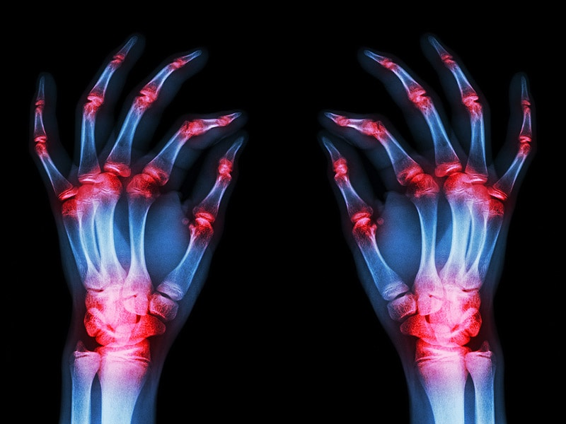 2015 Workforce Study and the Future for Rheumatologists