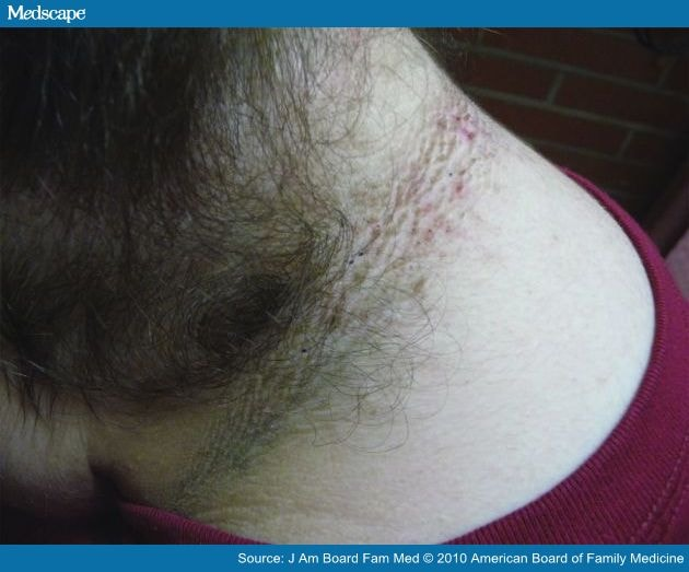 Acanthosis Nigricans High Prevalence And Association With