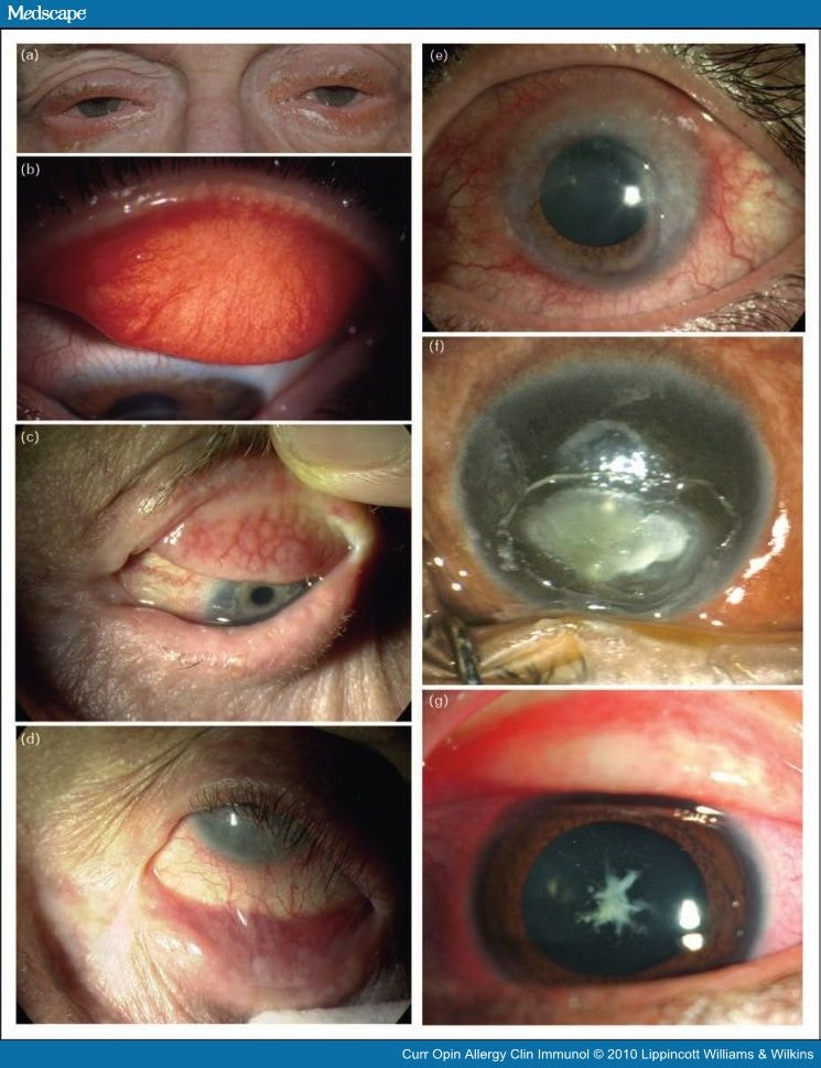 Eye ulcer treatment nhs