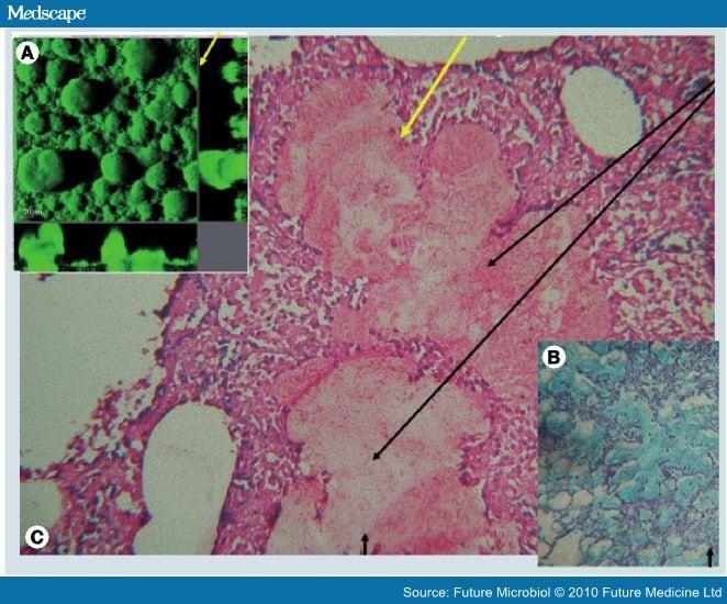Pseudomonas Aeruginosa Biofilms In Cystic Fibrosis
