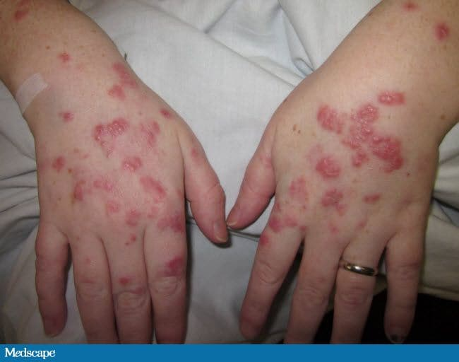 a fever, then a papular eruption: make a rash diagnosis, Skeleton