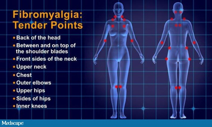 What are fibromyalgia's tender points?