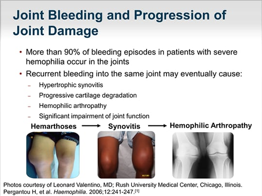 individualizing prophylaxis in hemophilia (transcript), Cephalic vein