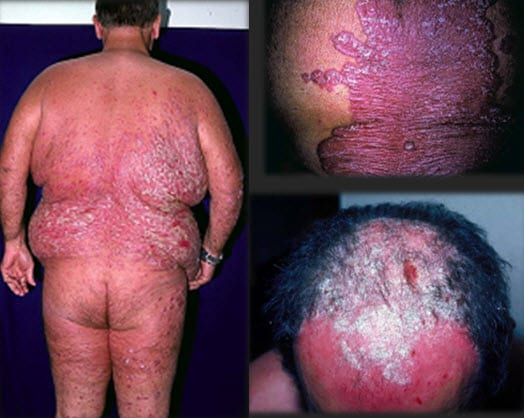 Psoriasis Case Challenge: Can You Effectively Manage the