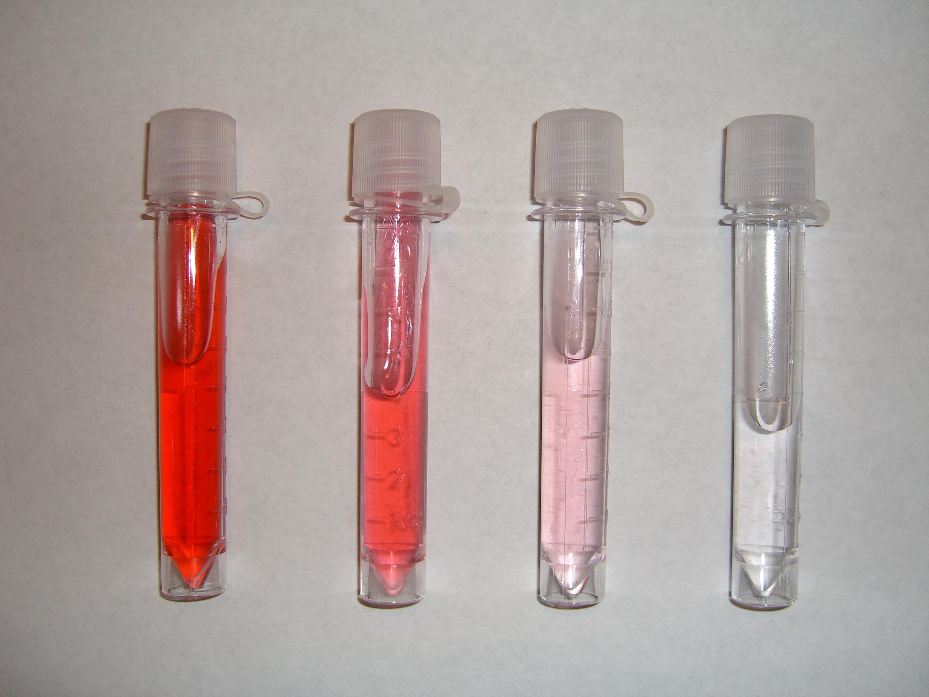 Image result for Pink urine