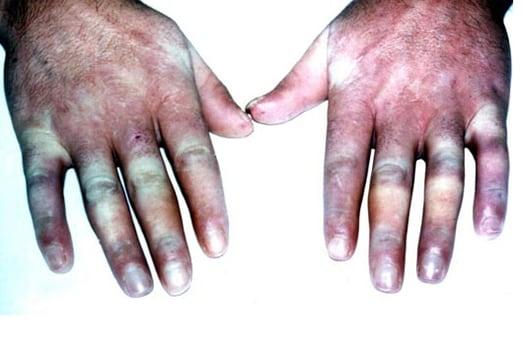 nichtsteroidale antiphlogistika salbe