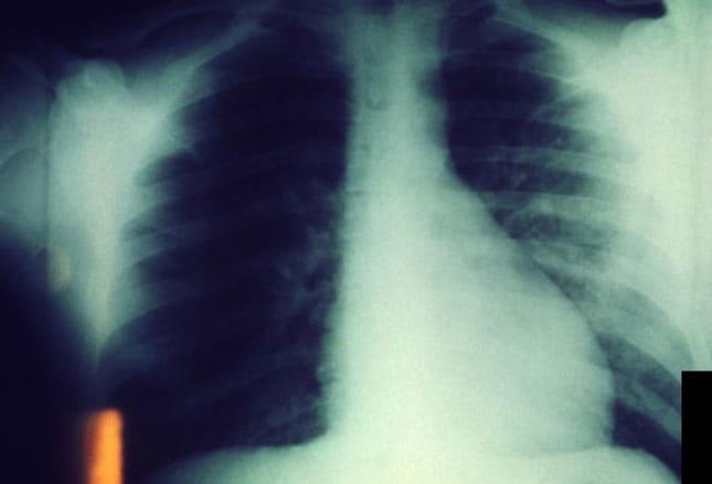 The Klinik Plague