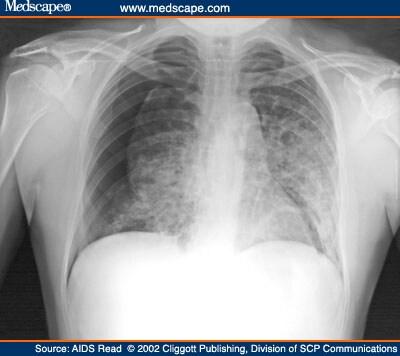 What is bilateral pneumonia?