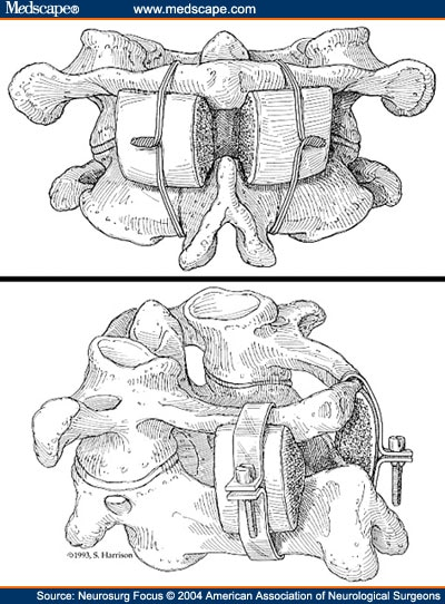 the evolution of posterior cervical and occipitocervical fusion upper drawing showing a brooks type of fusion bilateral interlaminar bone grafts secured c 1 and c 2 sublaminar wires