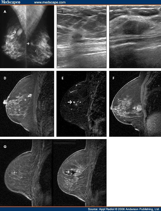 The Radiology Assistant : Breast - MRI