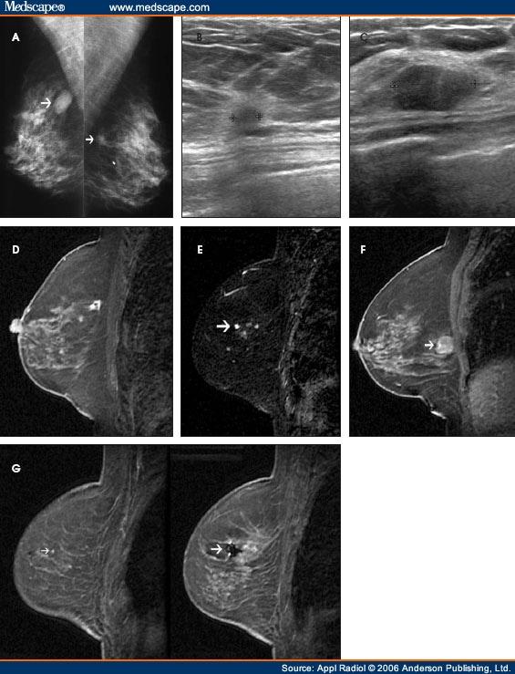 Enhancing lesion mri breast