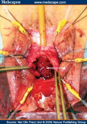Management Of Failed Sling Surgery For Female Stress