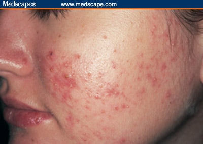 New York Back Page >> Acne and Rosacea: Differential Diagnosis and Treatment in the Primary Care Setting