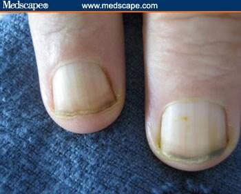 Examining the Fingernails B12 Deficiency Nails