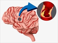 IMS-III: Endovascular Therapy Benefits Severe Stroke