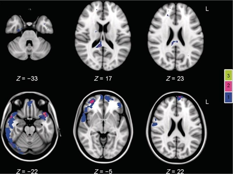 Brain Metabolites Predict Severity, Prognosis of TBI
