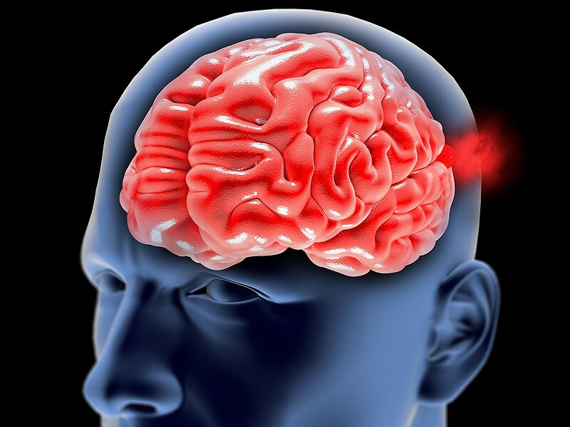 Clip Ligation Shows Long-term Durability for Aneurysms