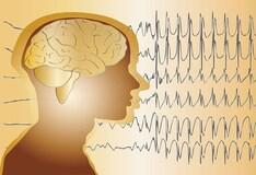 Cardiovascular Biomarkers In Acute Kawasaki Disease