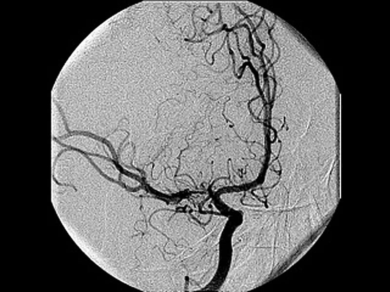 Stent Hazardous for Intracranial Stenosis in Second Study