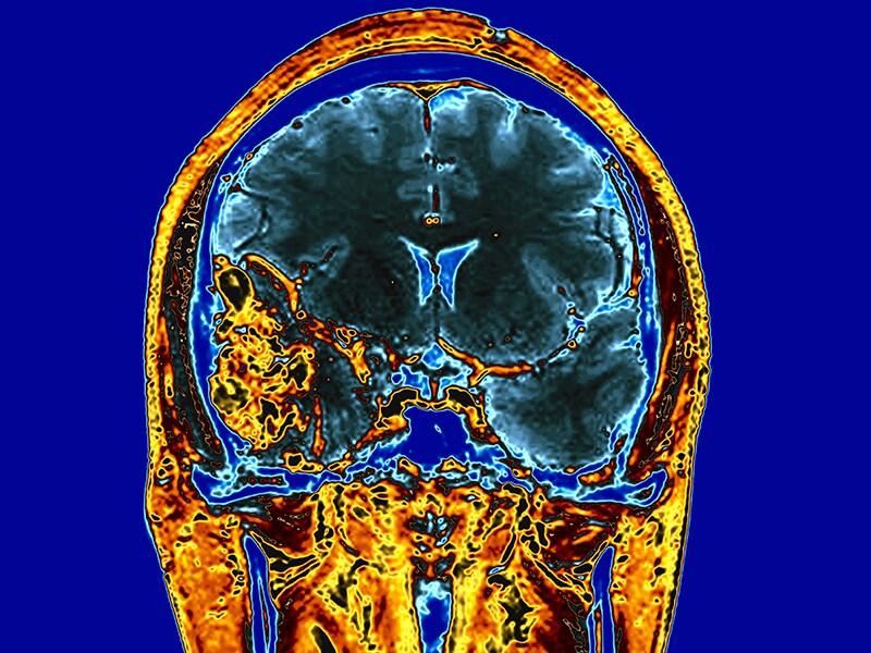 Gadolinium Found in Brain Tissue