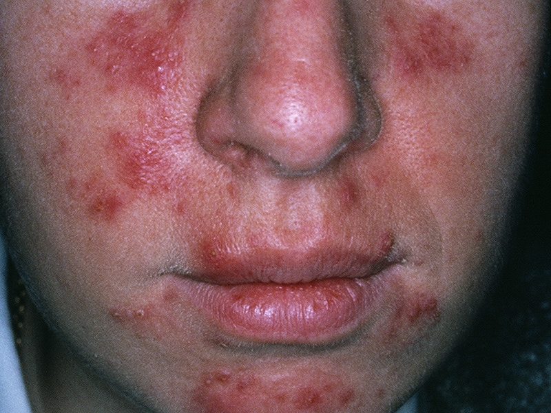 The Rosacea Support Group was created