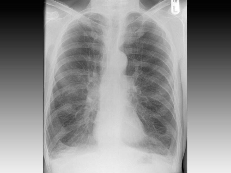 chronic obstructive pulmonary disease copd essay