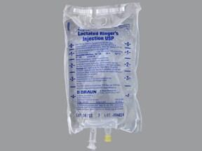 lactated ringers intravenous solution