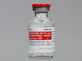 lidocaine 2 %-epinephrine 1:200,000 injection solution