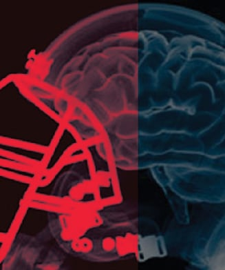 how to know if you have a concussion