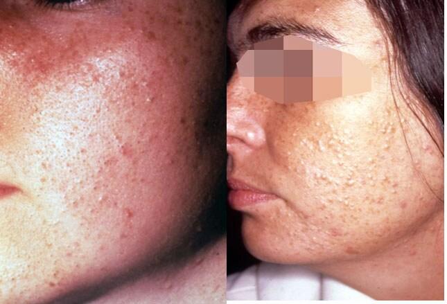 acne more than skin deep