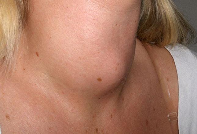 Cutaneous lupus erythematosus   DermNet New Zealand