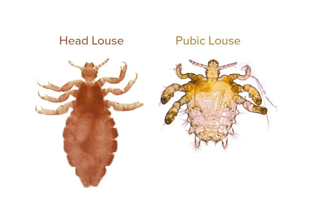 Image Gallery Lice Bugs