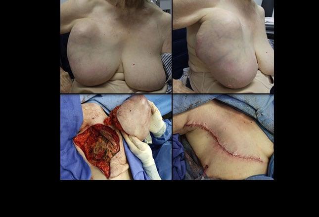 pics slideshow breast cancer surgery Drives