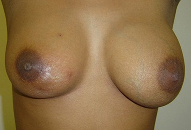 Two lumps in breast