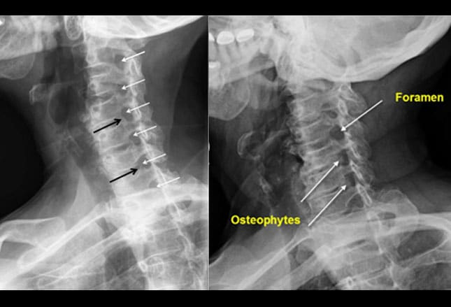 Interpretations Of The C Spine On Plain Radiography