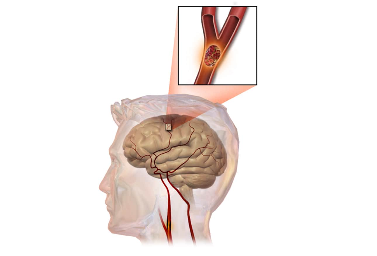 cardiovascular accident or stroke Stroke is an acute neurological condition due to a focal cerebrovascular event, which may either be vascular occlusion  stroke (cerebrovascular accident.