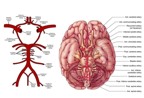 cerebrovascular accident: a stroke of misfortune, Skeleton