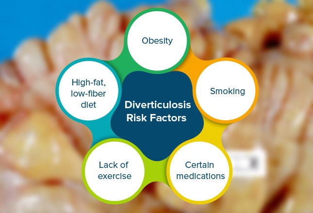 diverticulitis causes incidence and risk factors Diverticulitis has long been associated with low-fiber diet, but other factors may contribute even more, including age, obesity, smoking, and even genetics.