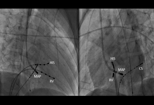Arrhythmia and emesis in a 9 year old boy case presentation - Ablation chambre implantable ...