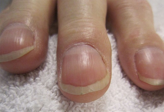 Nail (anatomy) - Wikipedia