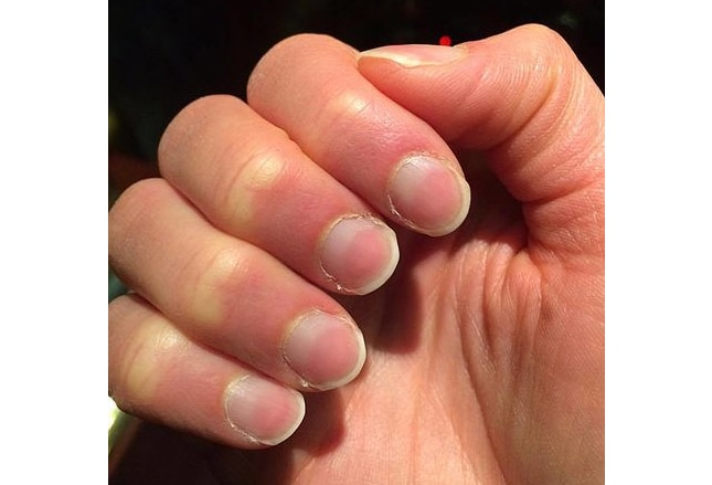 how to get long nail beds