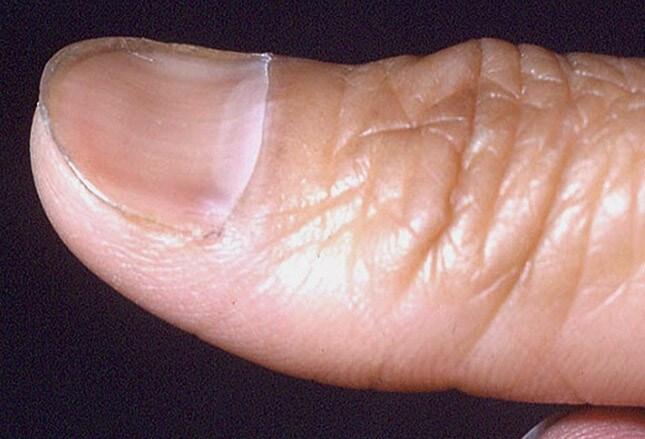 Fingernail And Toenail Abnormalities Nail The Diagnosis