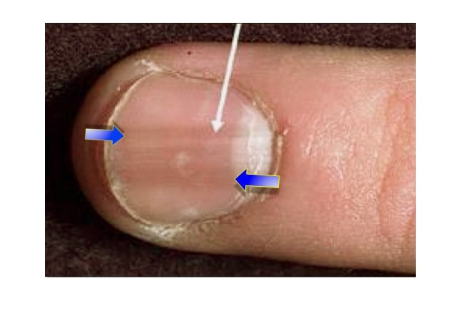 psoriasis under nails pictures