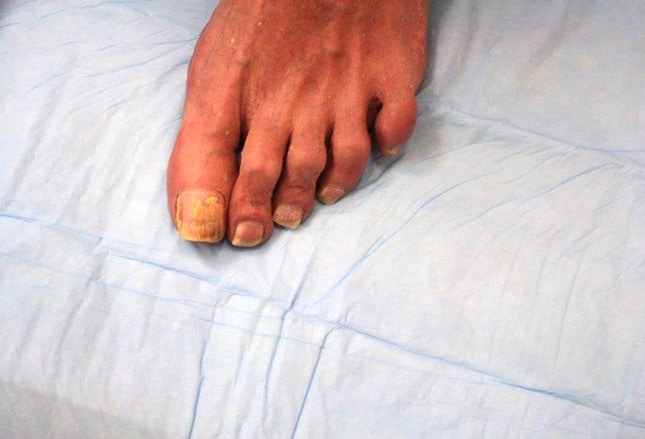 Diseases of the Nails: Slideshow – Medscape