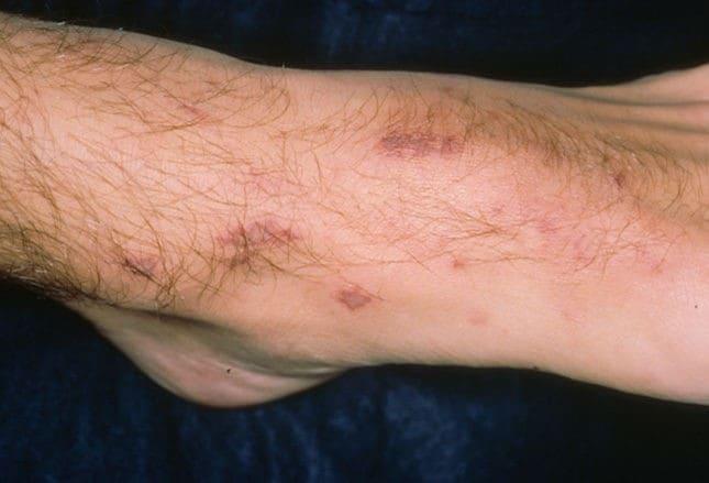 Skin Infections | Shingles | Impetigo | MedlinePlus