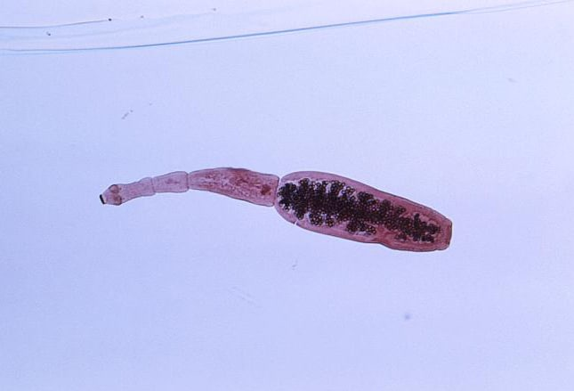 The gallery for --> Parasitic Worms In Human Skin
