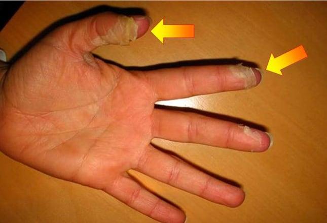 kawasaki disease: do you know the signs?, Skeleton