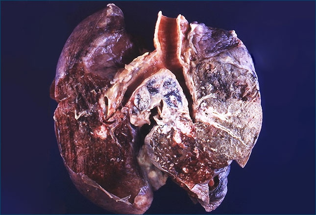 the main features of lung cancer Accreditation purposes, only the definitive primary cancer resection specimen is  required to have  ___ multifocal lung adenocarcinoma with lepidic features .