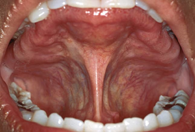 clues in the oral cavity: are you missing the diagnosis?, Cephalic Vein