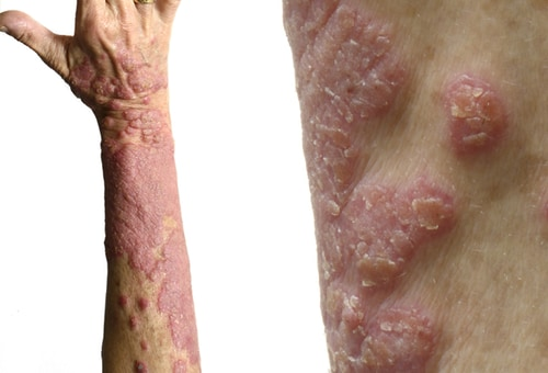 psoriasis: manifestations, management options, and mimics, Skeleton